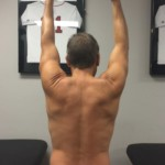 How to Improve Overhead Shoulder Mobility
